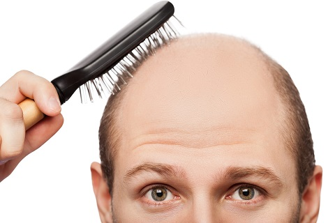 Philadelphia Hair Transplant Debunking These Common Hair Loss Myths