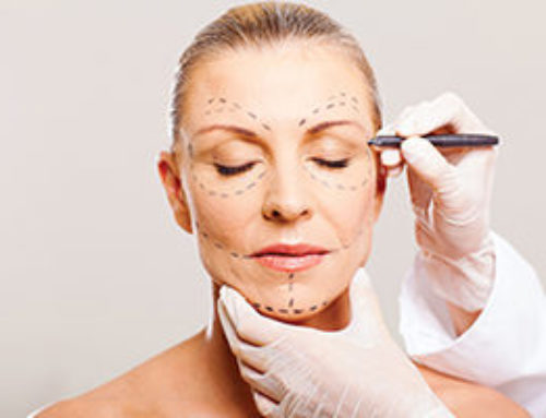 What Is the Difference Between a Mini Facelift and a Full Facelift?